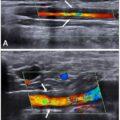 Ultralyd sammenligned med MR for arteritt