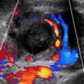 April 2021 - Magesmerter og positiv urinstix hos gravid kvinne